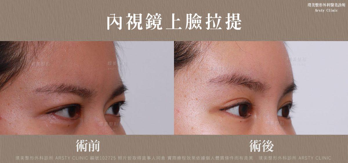 內視鏡上臉拉提 內視鏡提眉 拉皮手術 14