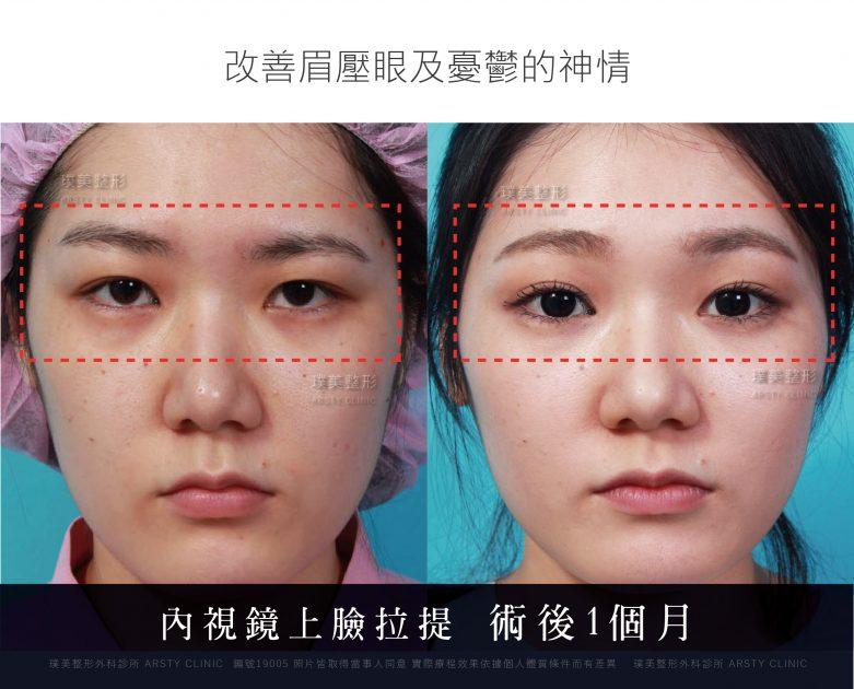 內視鏡上臉拉提 內視鏡提眉 拉皮手術 16