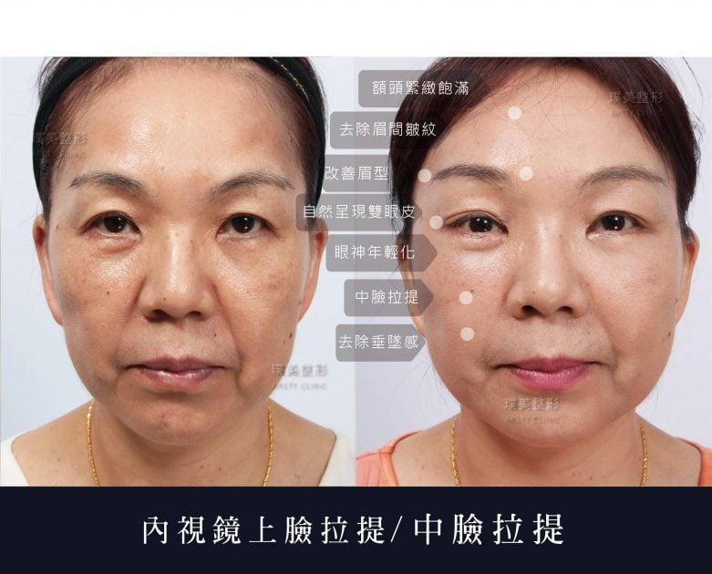 內視鏡上臉拉提 內視鏡提眉 拉皮手術 18