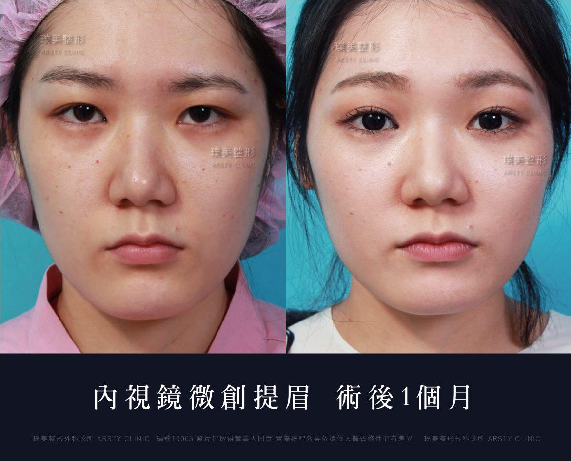 內視鏡上臉拉提 內視鏡提眉 拉皮手術 19