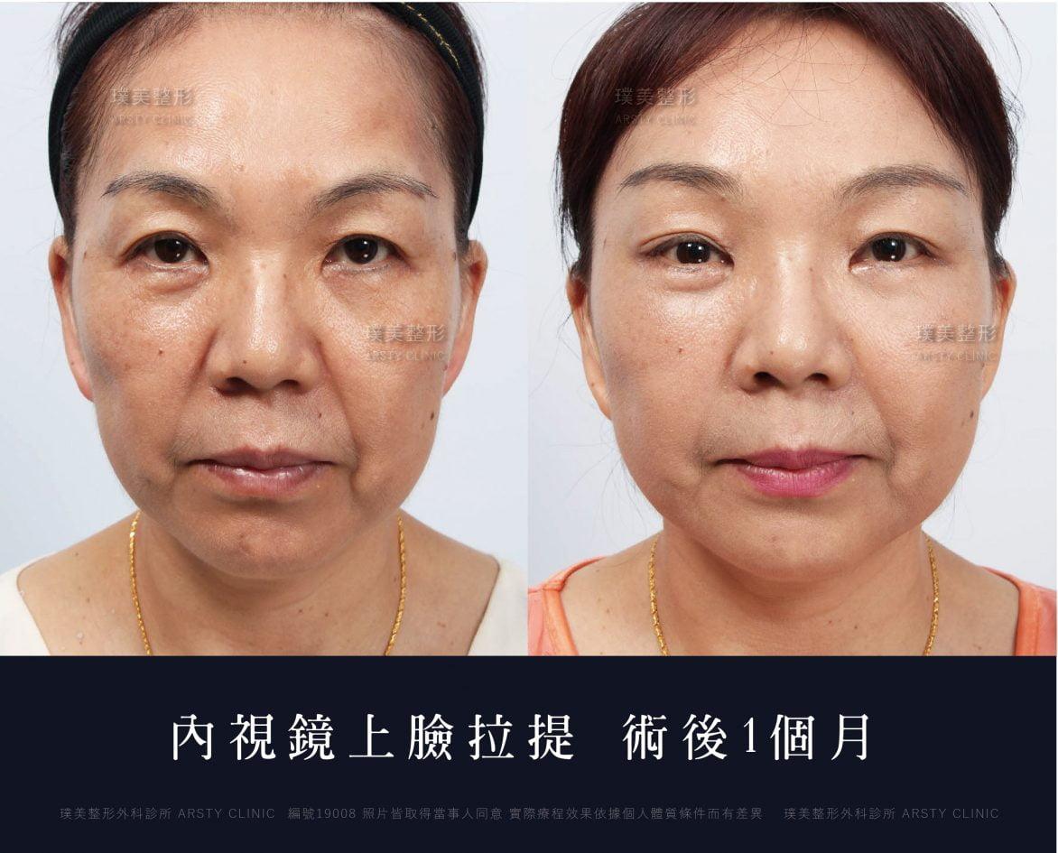 內視鏡上臉拉提 內視鏡提眉 拉皮手術 28