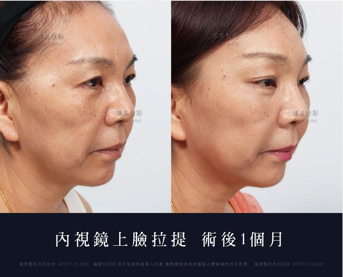 內視鏡上臉拉提 內視鏡提眉 拉皮手術 29