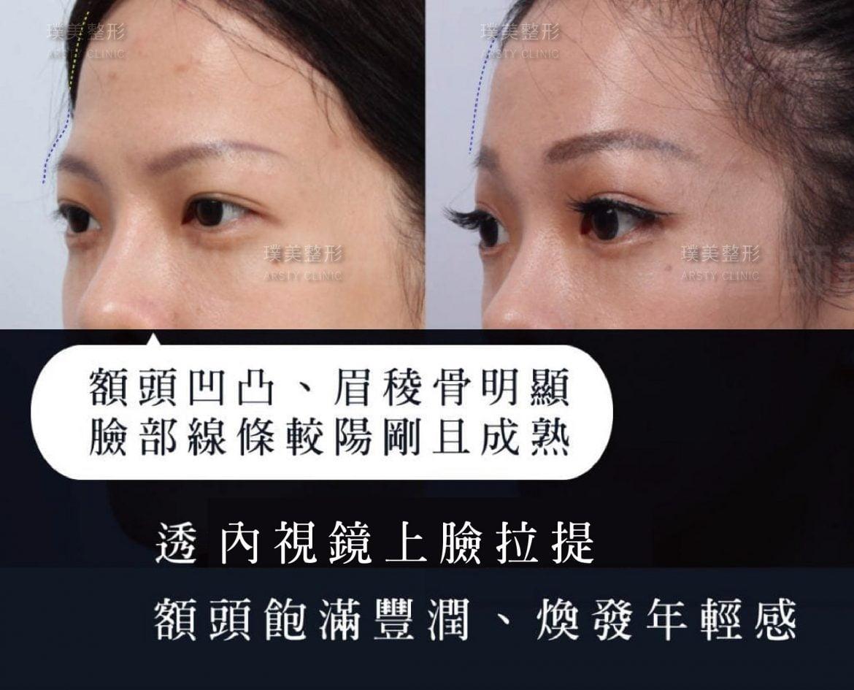 內視鏡上臉拉提 內視鏡提眉 拉皮手術 32