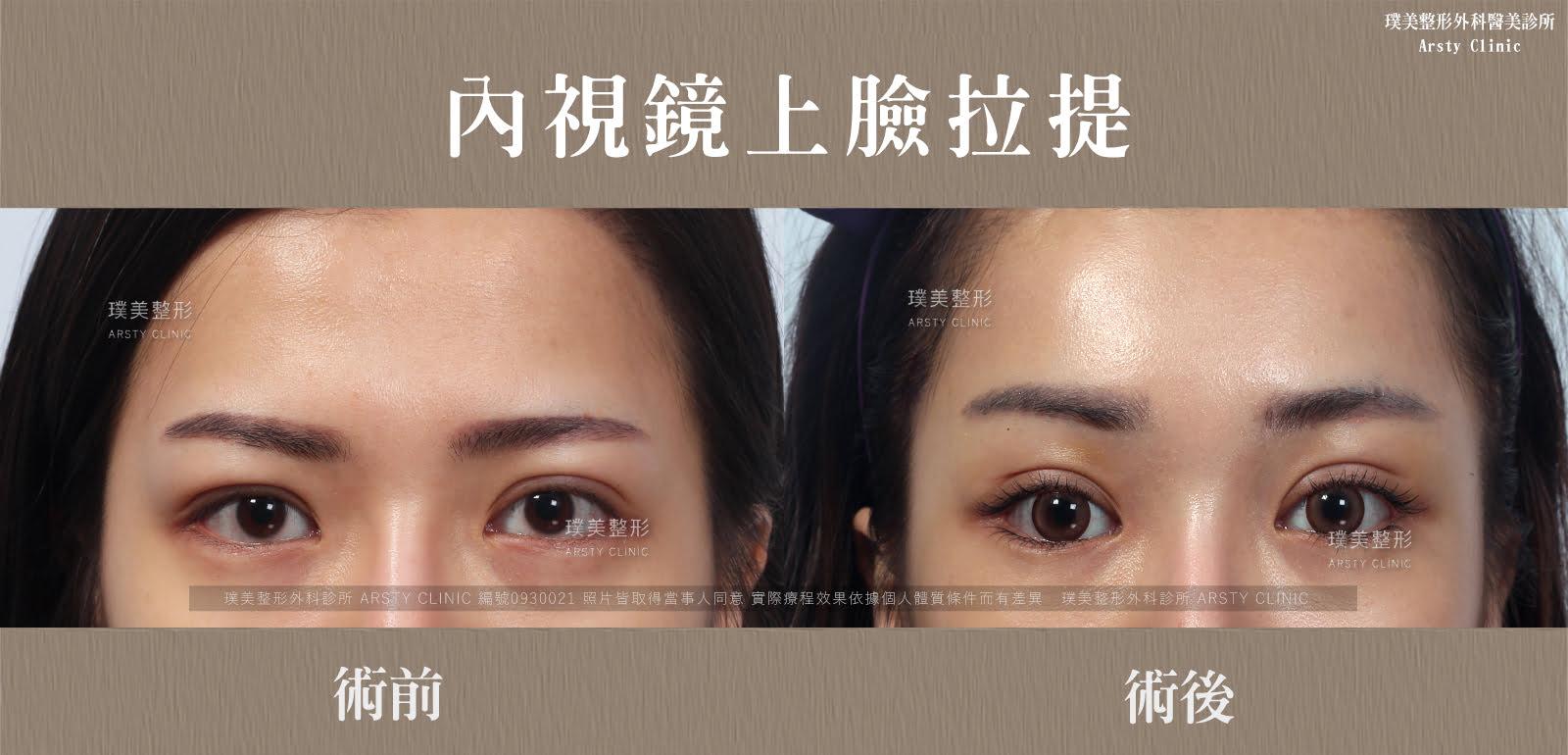 內視鏡上臉拉提 內視鏡提眉 拉皮手術 36