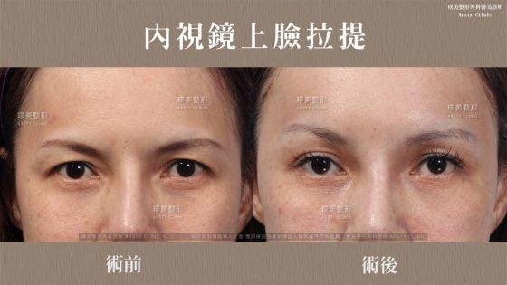 內視鏡上臉拉提 內視鏡提眉 拉皮手術 38