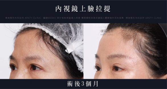 內視鏡上臉拉提 內視鏡提眉 拉皮手術 45