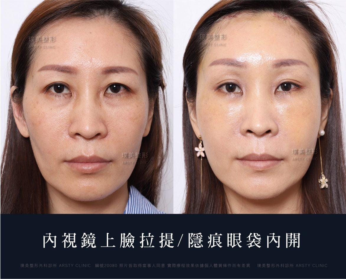 內視鏡上臉拉提 內視鏡提眉 拉皮手術 5