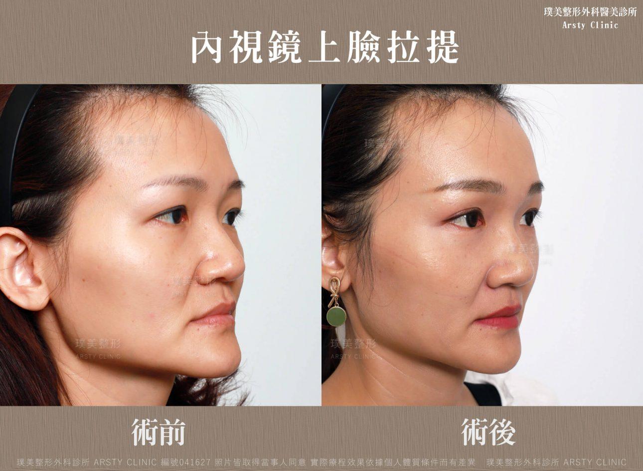 內視鏡上臉拉提 內視鏡提眉 拉皮手術 9