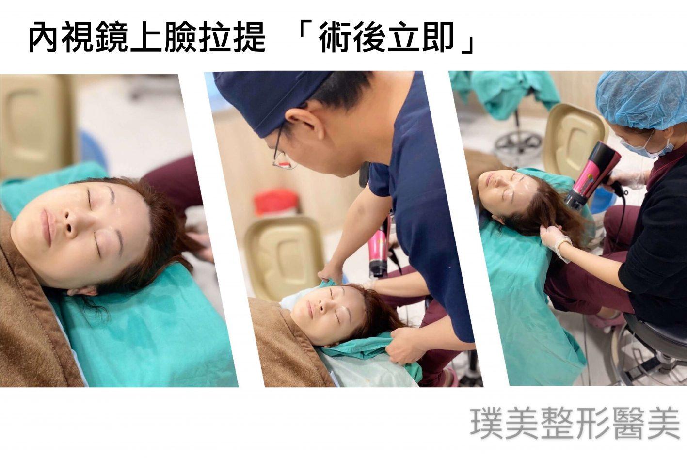 內視鏡提眉 內視鏡上臉拉提 手術 洗頭