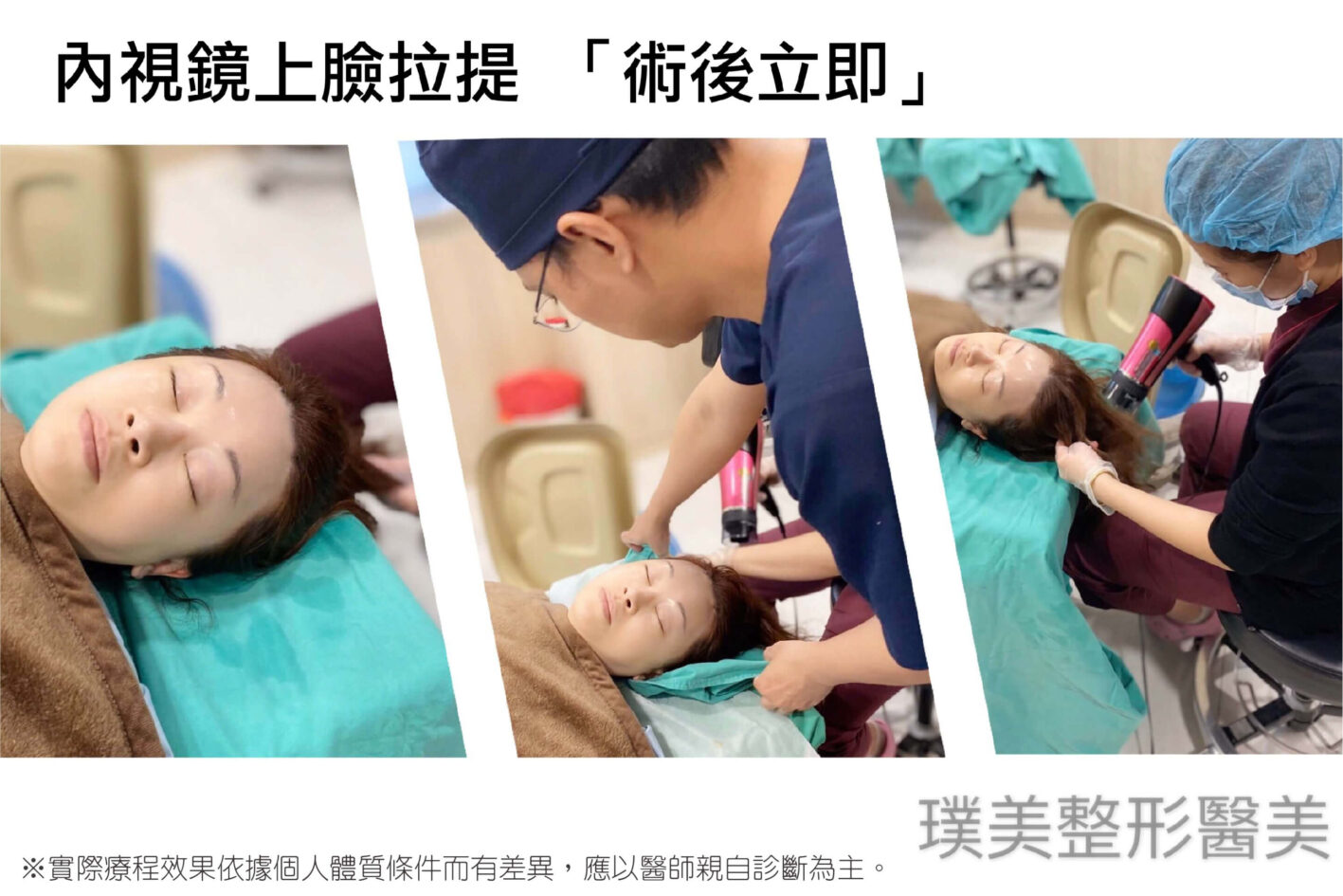 內視鏡提眉 內視鏡上臉拉提 手術 洗頭 2