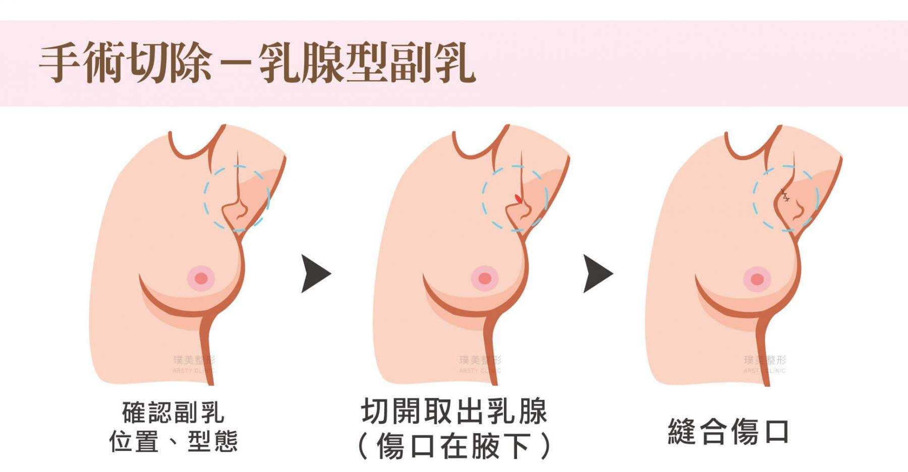 副乳手術方式,手術切除,乳腺型副乳
