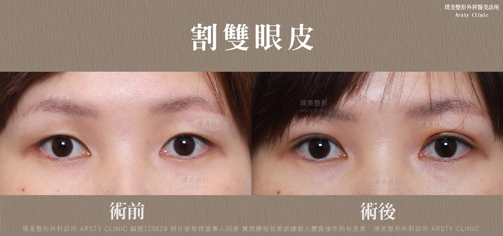 割雙眼皮-BA-局-120628