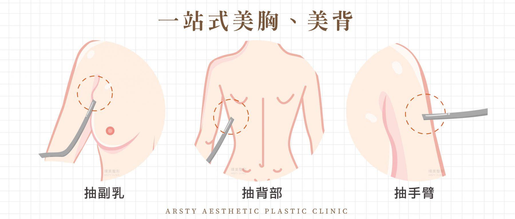 副乳手術合併隆乳手術,背部抽脂手術