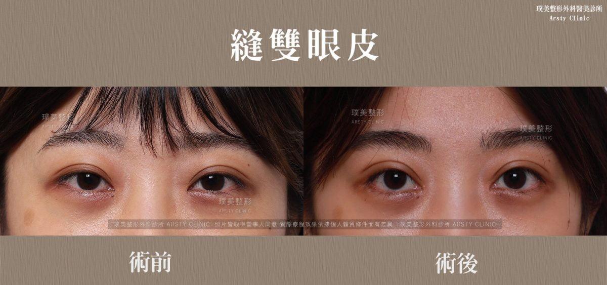 縫雙眼皮-BA-局部-01