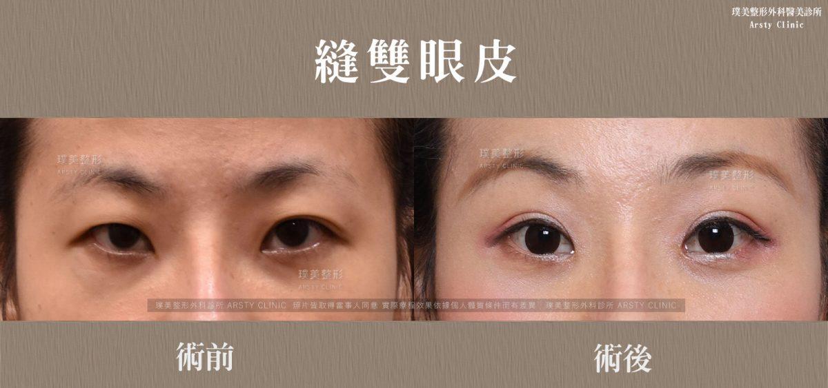 縫雙眼皮-BA-局部-03