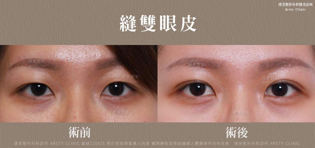 縫雙眼皮-BA-局-120425