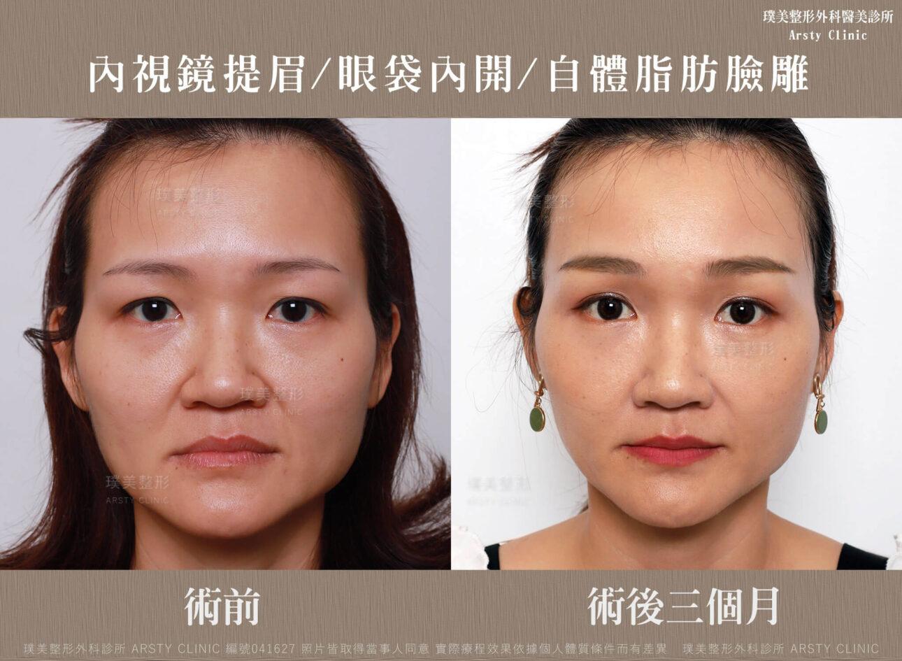 內視鏡提眉 上臉拉提 拉皮 眼袋內開 臉雕補脂 BA 041627 三個月正面 1