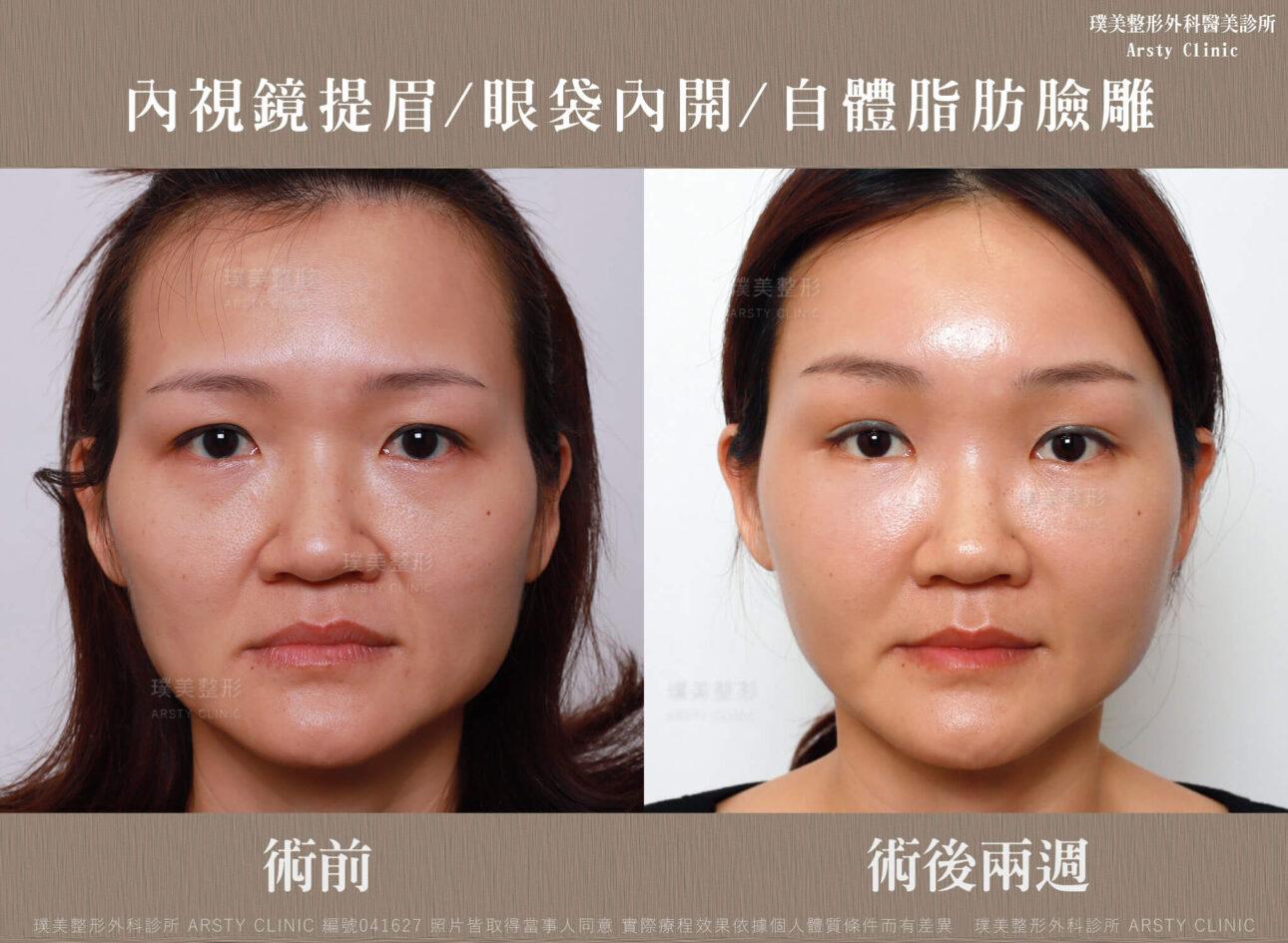 內視鏡提眉 上臉拉提 拉皮 眼袋內開 臉雕補脂 BA 041627 三個月正面 10