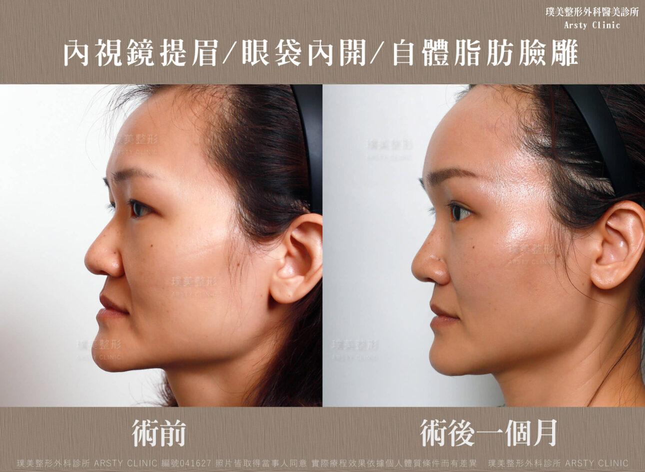 內視鏡提眉-上臉拉提-拉皮-眼袋內開-臉雕補脂-BA-041627-三個月正面 (13)