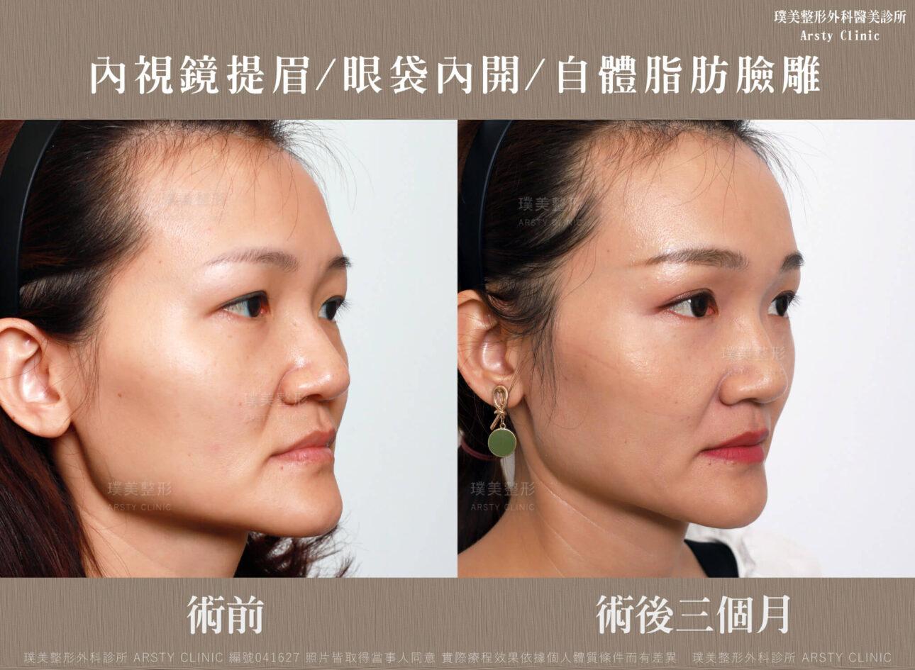 內視鏡提眉-上臉拉提-拉皮-眼袋內開-臉雕補脂-BA-041627-三個月正面 (14)
