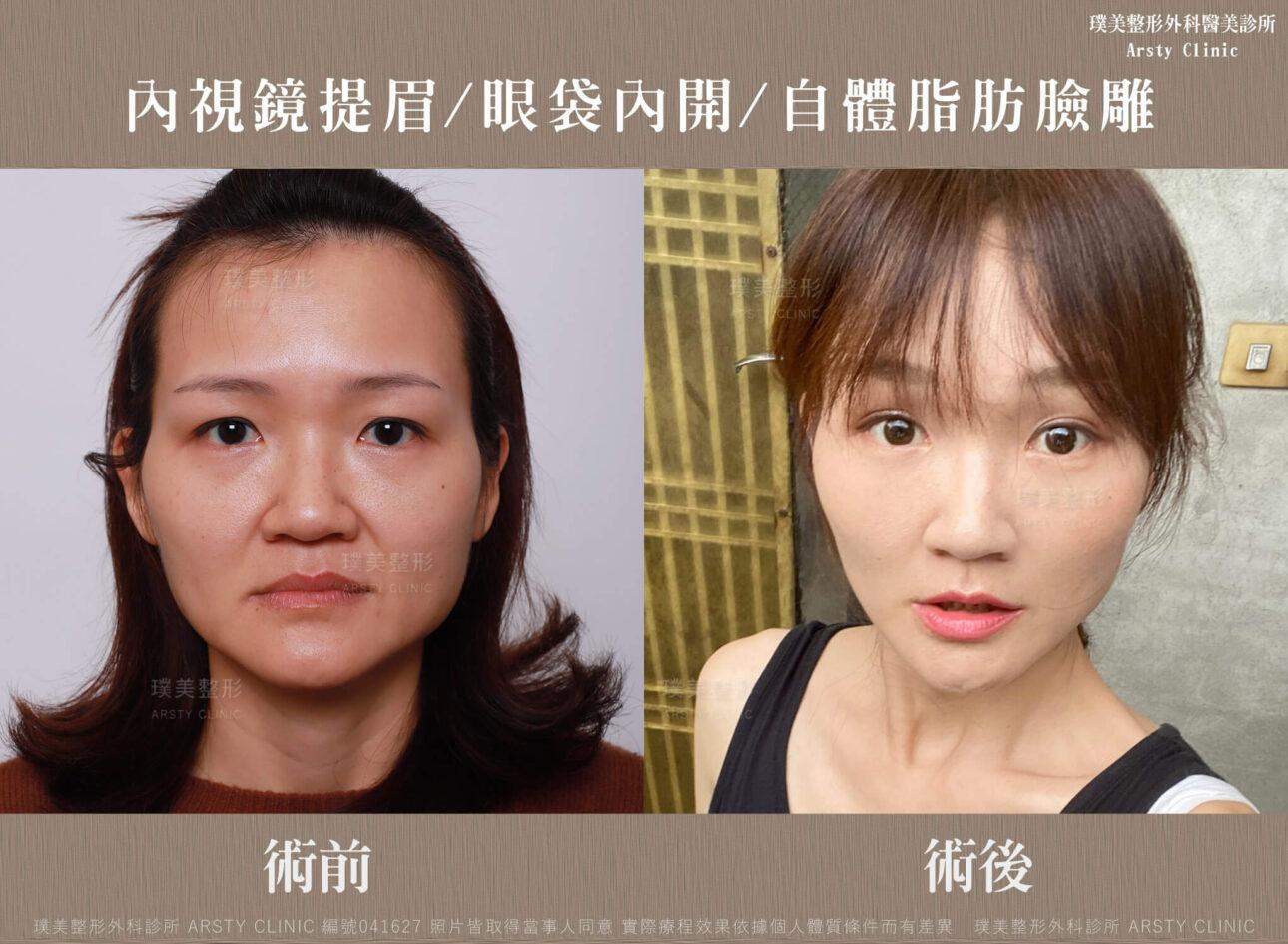 內視鏡提眉 上臉拉提 拉皮 眼袋內開 臉雕補脂 BA 041627 三個月正面 2