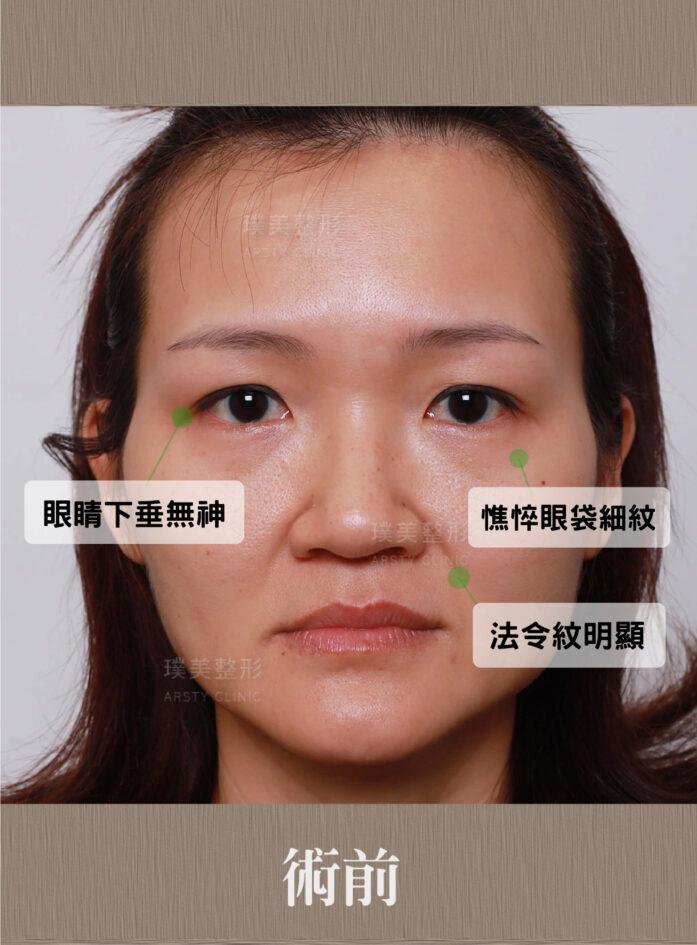 內視鏡提眉 上臉拉提 拉皮 眼袋內開 臉雕補脂 BA 041627 三個月正面 3