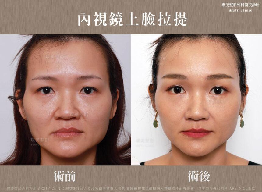 內視鏡提眉 上臉拉提 拉皮 眼袋內開 臉雕補脂 BA 041627 三個月正面 6