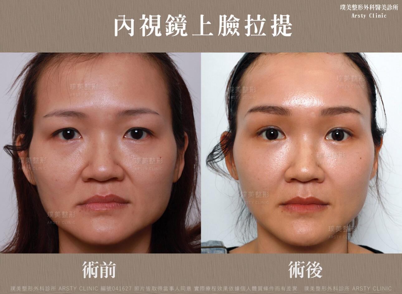 內視鏡提眉 上臉拉提 拉皮 眼袋內開 臉雕補脂 BA 041627 三個月正面 7