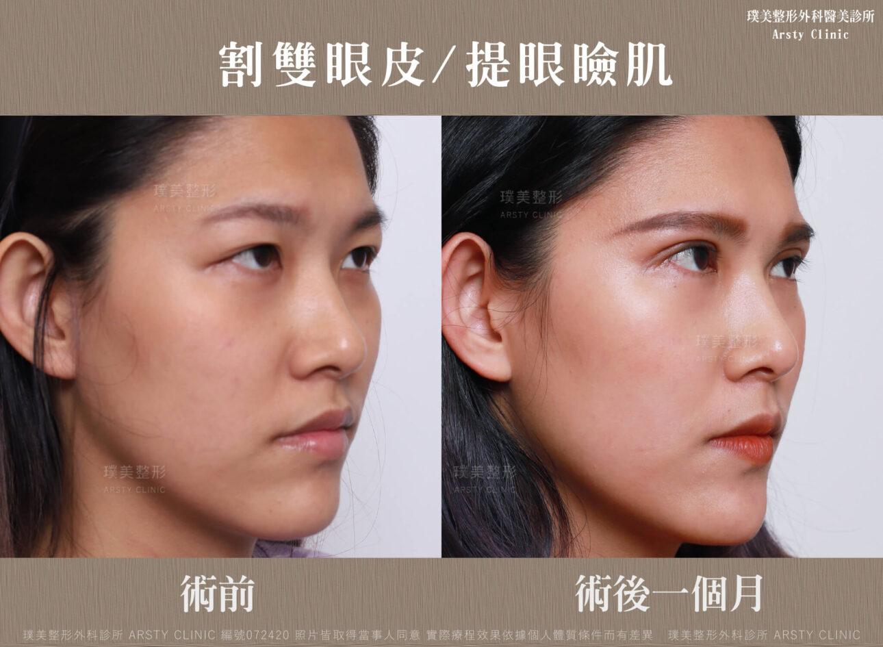 割雙眼皮、提眼瞼肌-BA-右45-072420-1M