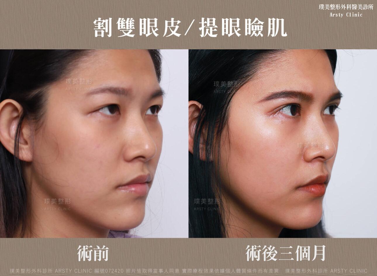 割雙眼皮、提眼瞼肌-BA-右45-072420-3M