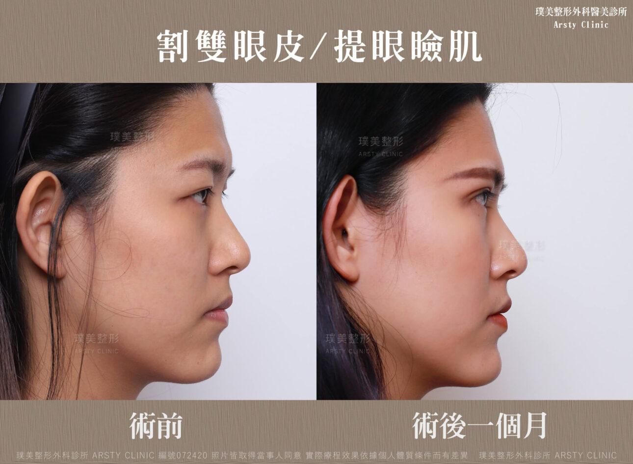 割雙眼皮、提眼瞼肌-BA-右90-072420-1M