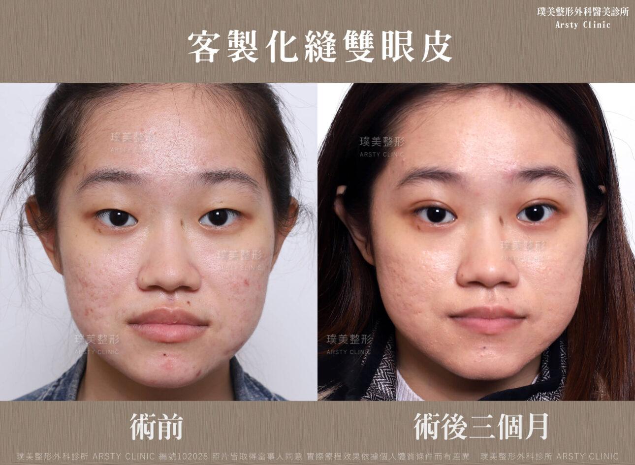 縫雙眼皮-BA-102028-正面-1m
