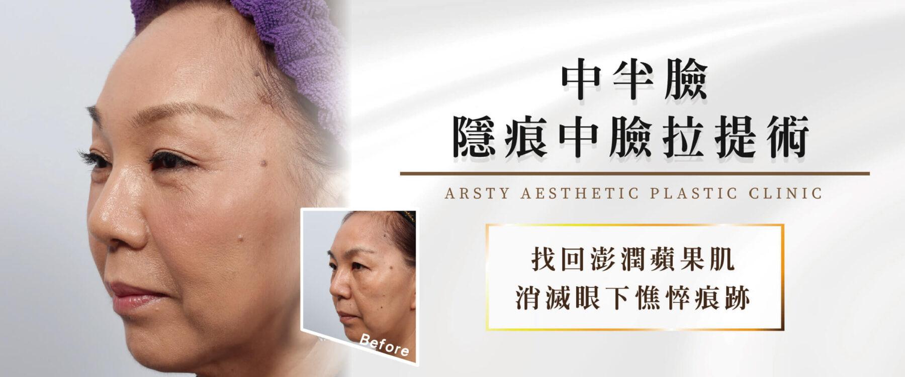 中半臉:隱痕中臉拉提術Banner2