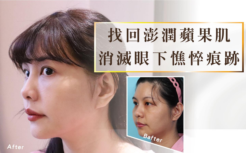 集合頁-隱痕中臉拉提術Banner