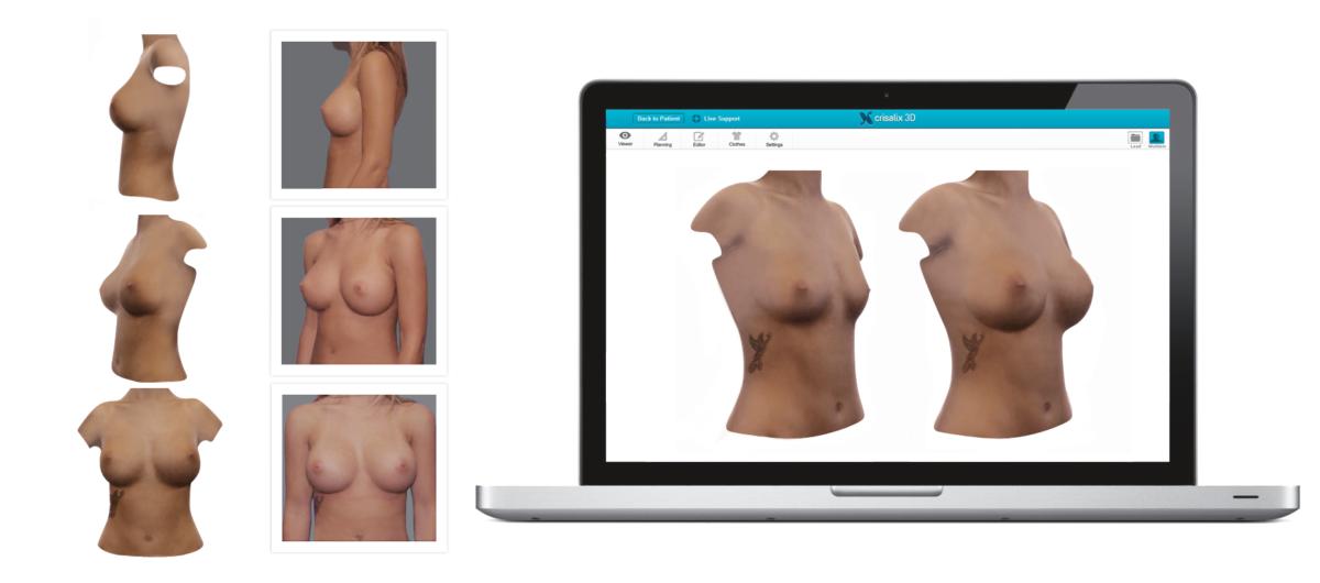 crisalix整形手術模擬諮詢 2