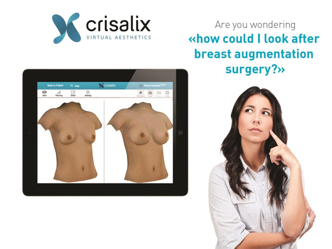 crisalix整形手術模擬諮詢 3