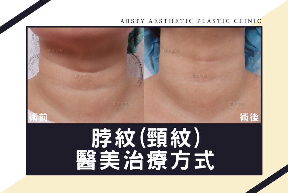 脖紋治療方式
