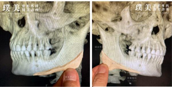 正顎手術3D斷層掃描影像系統