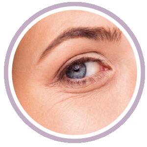 威萃治療部位︰眼周紋路