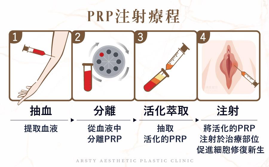 PRP注射療程
