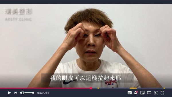 W 外開眼袋提眼瞼肌 影片截圖 2