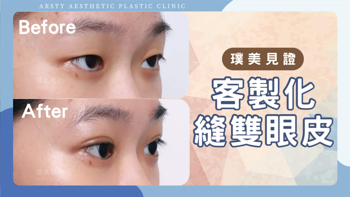 【縫雙眼皮、開眼頭】客製化雙眼皮,打造有神大眼!