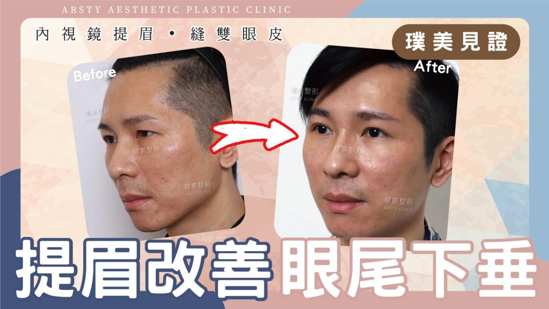 【內視鏡提眉+縫雙眼皮】改善眼尾下垂~變身型男業務!