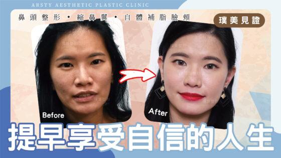 案例影片-C221008_鼻頭整形、縮鼻翼、自體脂肪臉頰補脂