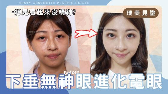 【影音】一站式眼整形案例,提眼瞼肌+割雙眼皮讓我的下垂無神眼進化魅力電眼