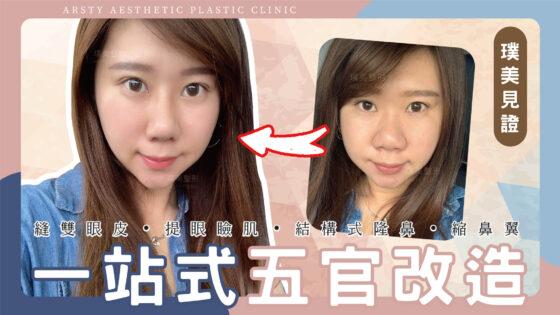 【縫雙眼皮、提眼瞼肌、結構式隆鼻、縮鼻翼】一站式整形~讓我不只變美,更兼具質感自然