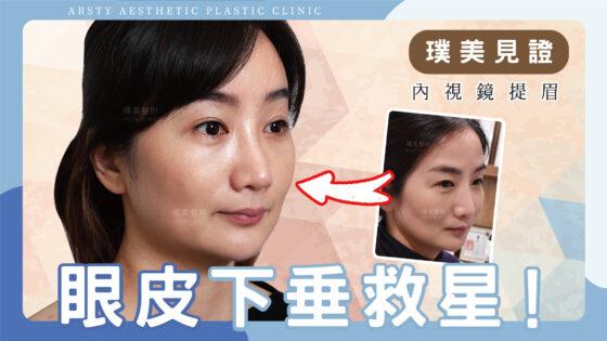 內視鏡提眉分享,眼皮下垂救星!拉提效果CP值最高的療程